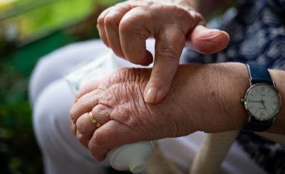 CBD per curare artrite