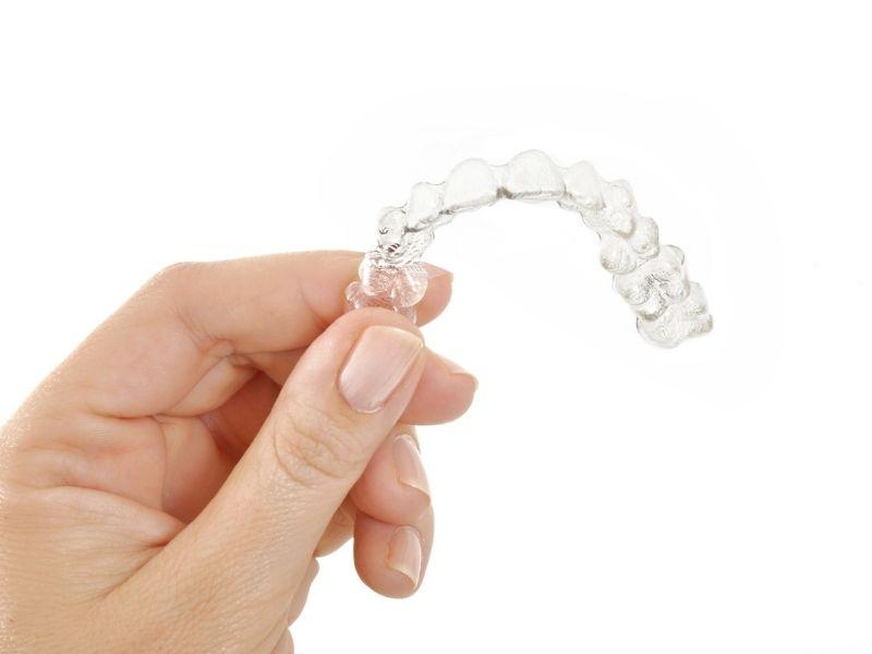 Ortodonzia invisibile: come funziona, costi e vantaggi