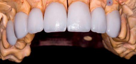 Faccette dentali: cosa sono e come funzionano